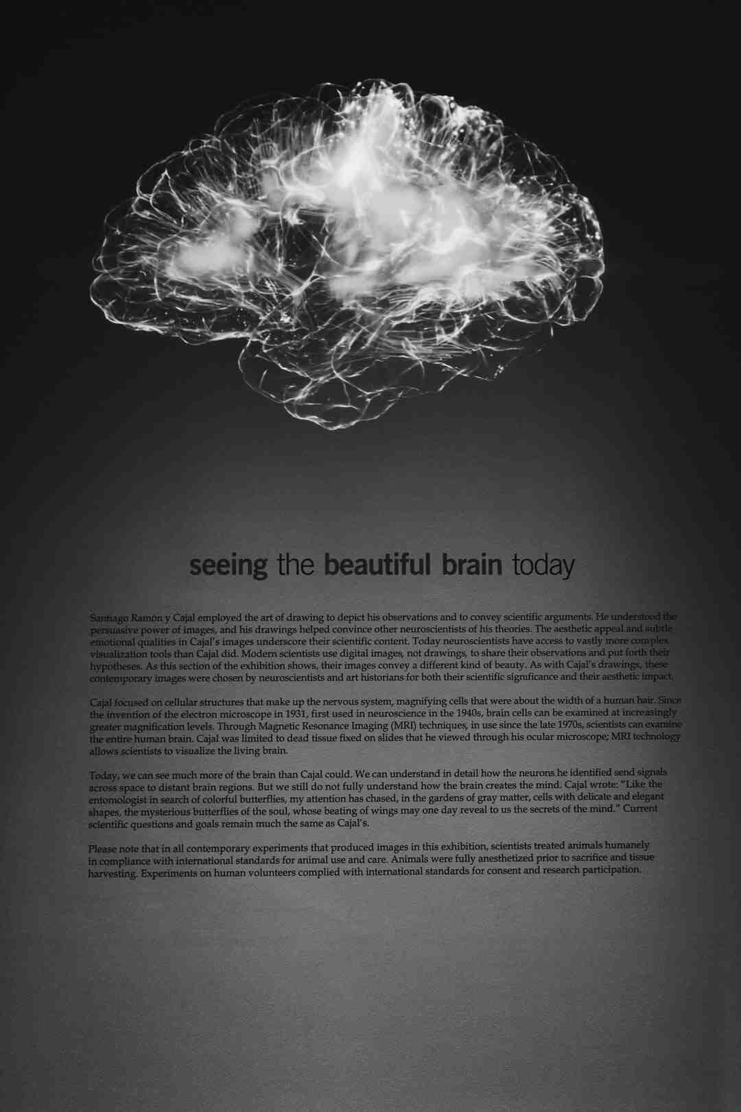 Comment le cerveau reçoit les informations ?